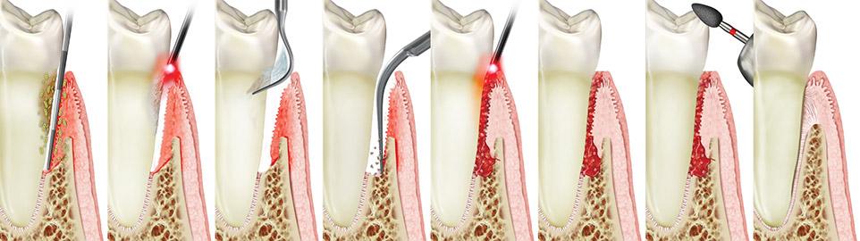 Periodontal (gum) disease treatment with LANAP